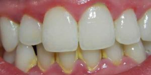 placa-dental-dents
